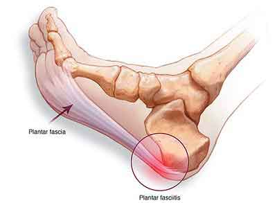 Causes of Plantar Fasciitis Foot Pain