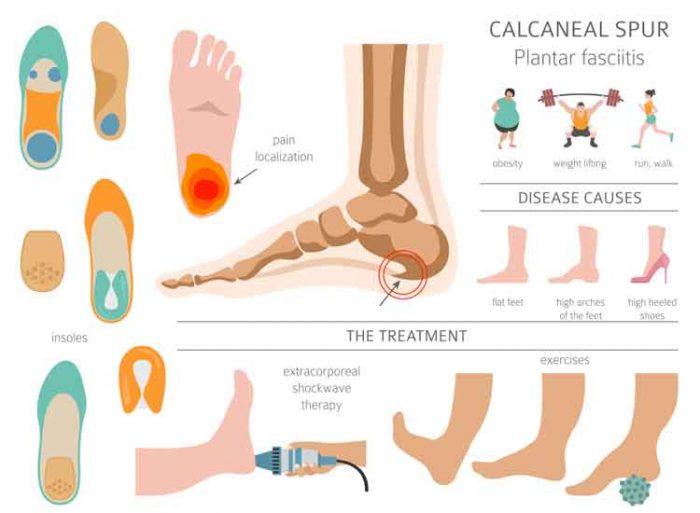 Plantar Fasciitis Foot and Heel Pain Relief