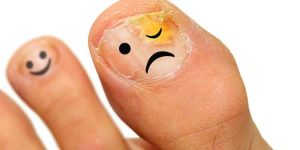 How to Get Rid of Ugly Toenail Fungus from Home