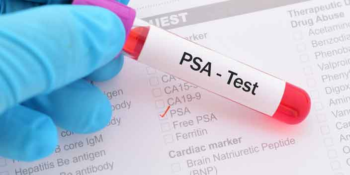 New Stages of Prostate Cancer Marker